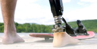 protesi arti